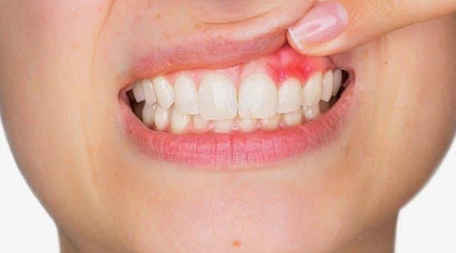 """""""Sigara, periodontitis için bir risk faktörüdür"""""""
