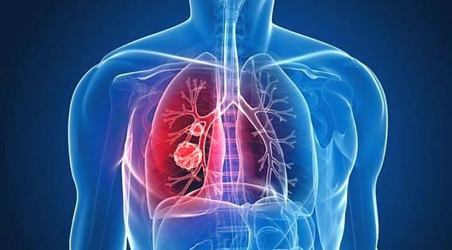 KOAH Çok Sık Rastlanan Bir Akciğer Hastalığı